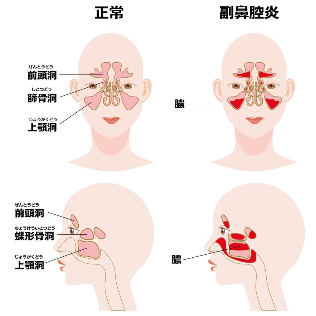鼻腔 自力 治す 炎 副 で 副鼻腔炎の治し方(症状・原因・治療法)セルフケアまとめ|カラダネ